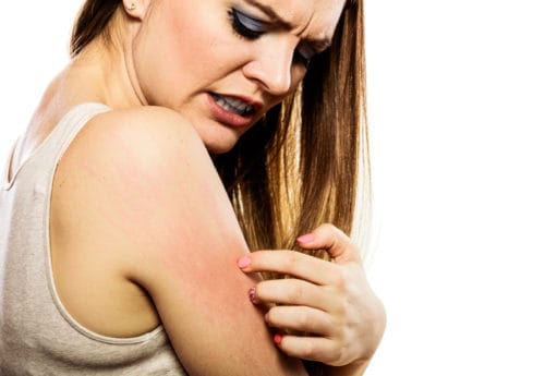 A women scratching a rash on her arm