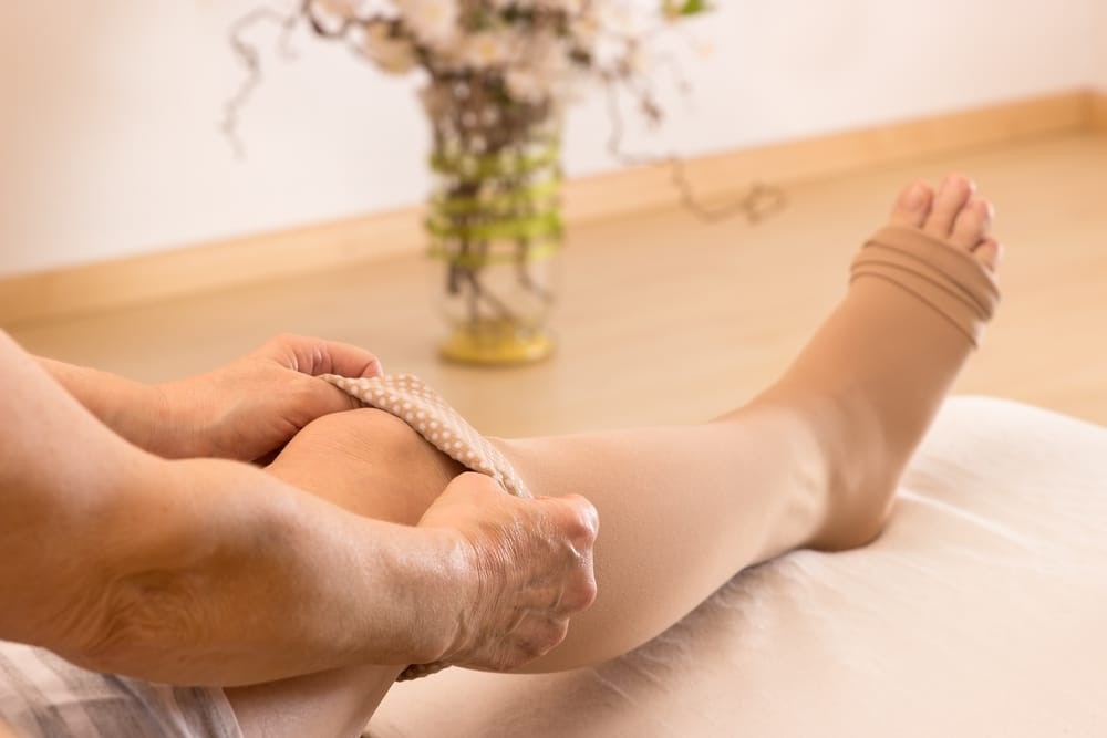 What is DVT and how can you treat it?