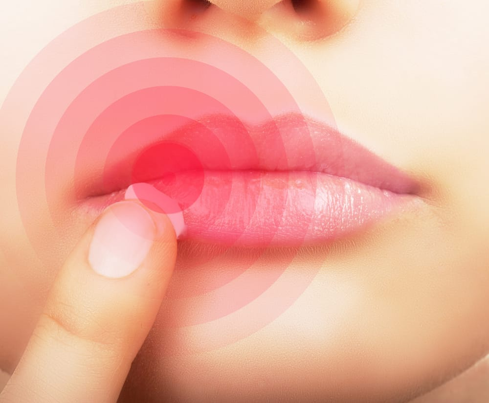 Cold sores: causes, treatment and prevention
