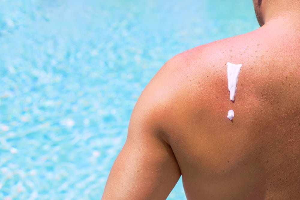 How to naturally treat sunburn