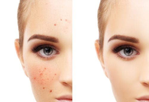 Women clear face and spotty face
