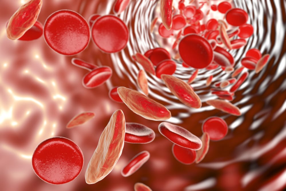 What's causing your anaemia?