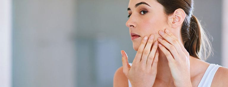 Bothered by adult acne? Omega-3 could help