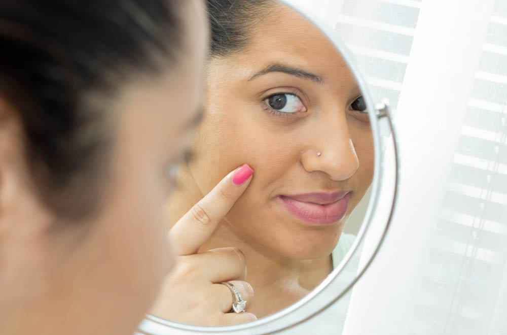 How to beat adult acne | Holland & Barrett