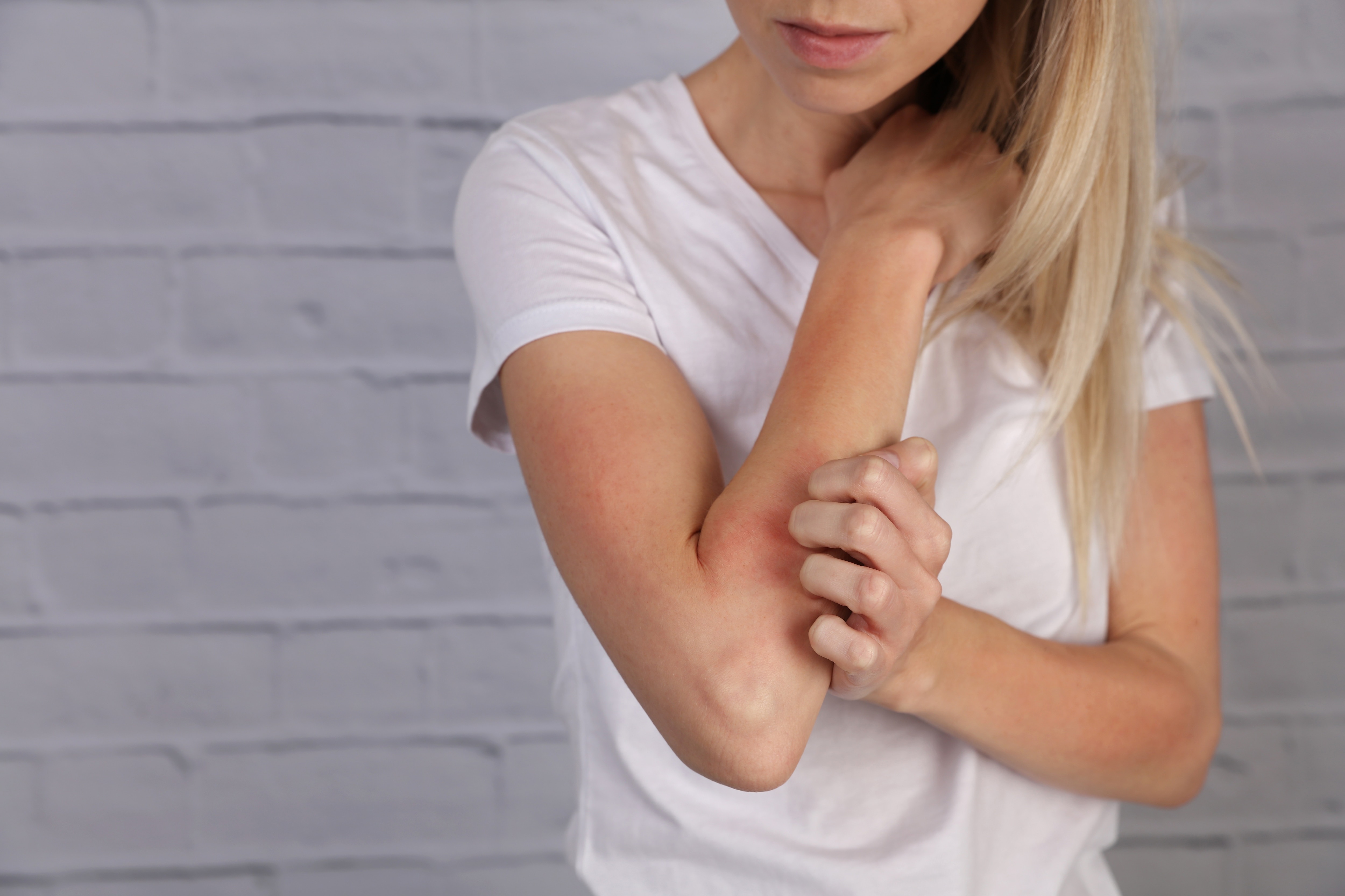 Eczema vs dermatitis Q&A: What's really causing your dry, itchy skin?