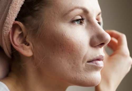 Acne scarring: Q&A