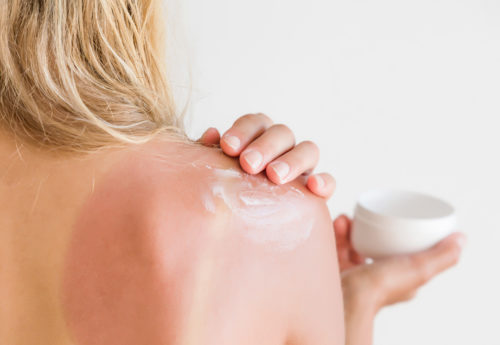 woman applying a home remedy on sunburn
