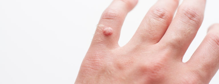 Your guide to warts