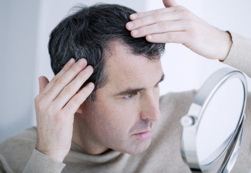 Best treatments to slow down hair loss