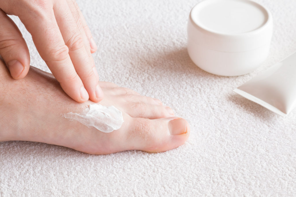 The best athlete's foot treatments
