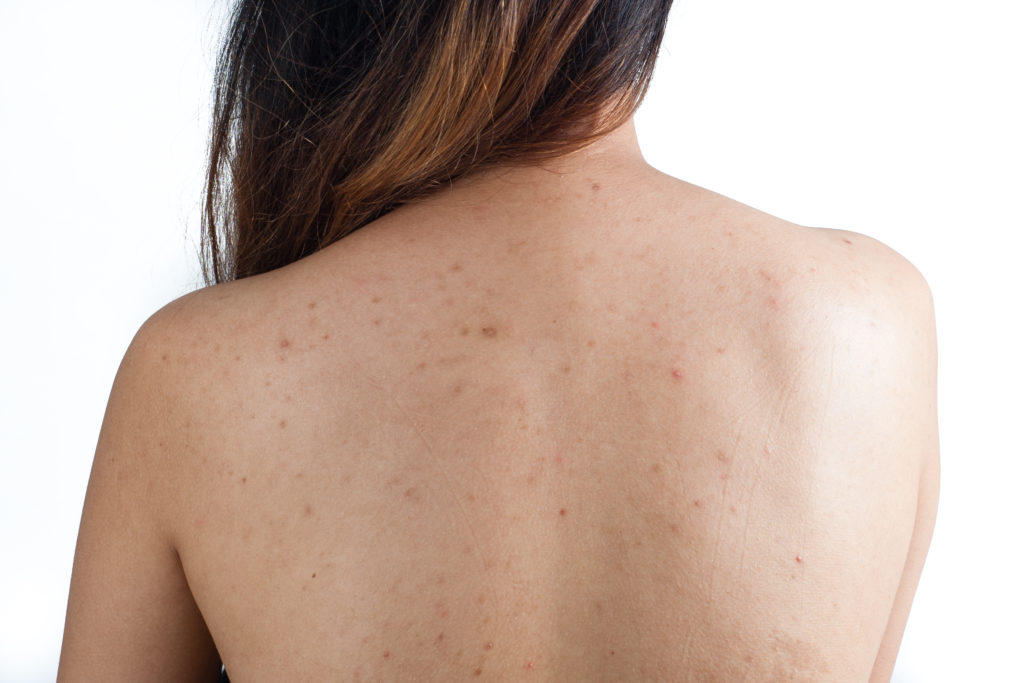 Possible causes for acne on your back and how to stop it