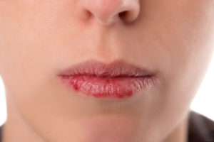 Lips appear to have started bleeding and skin looks crusty where it is trying to heal.